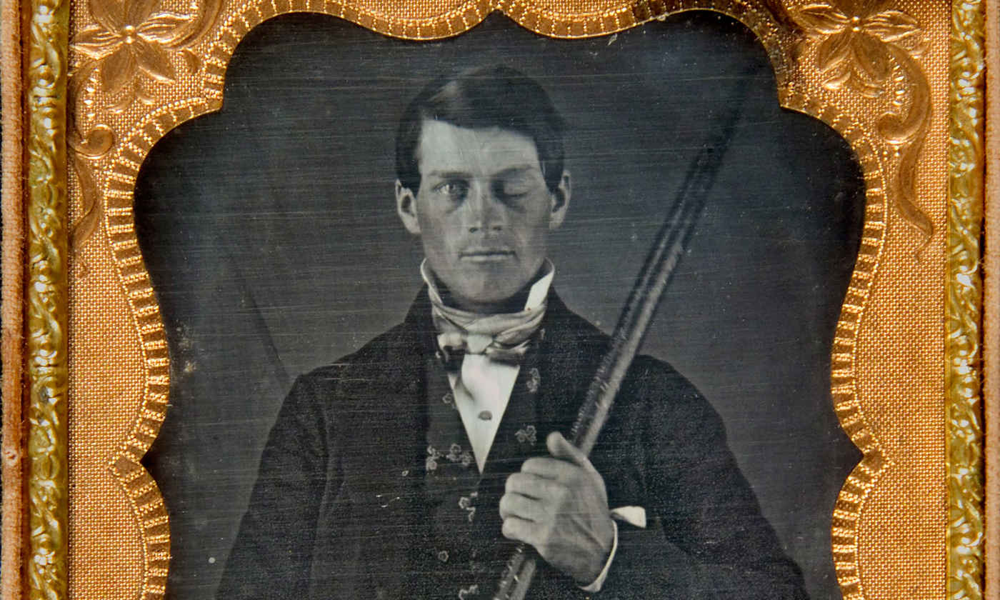 The Phineas Gage effect   Aeon