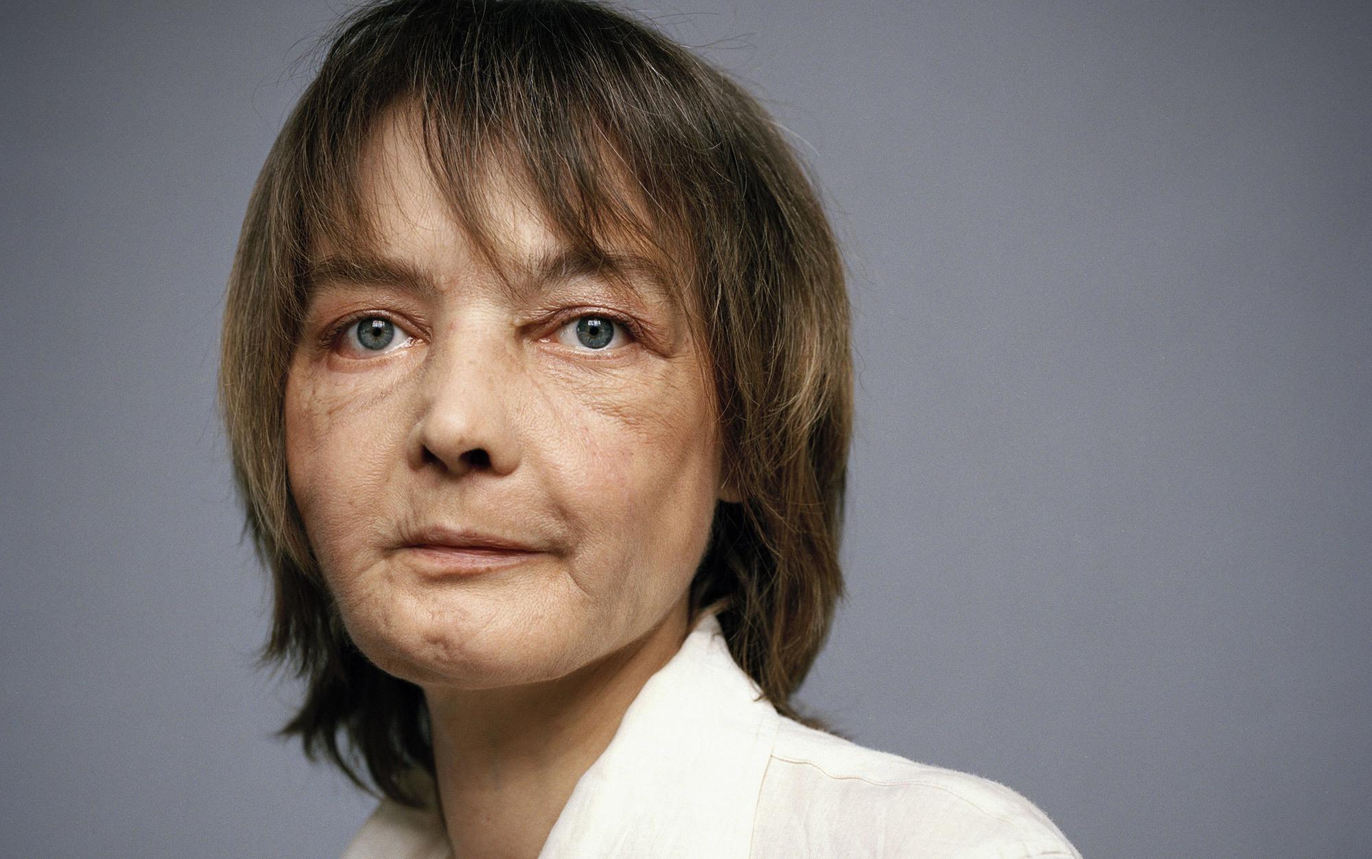 Facial transplant ethics