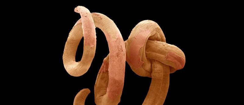 We need worms