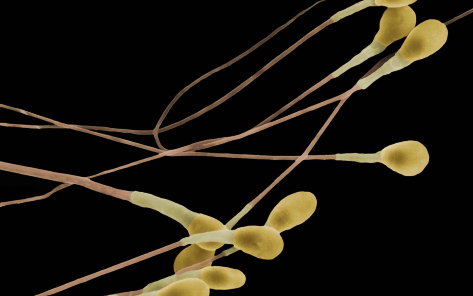 Header sperm
