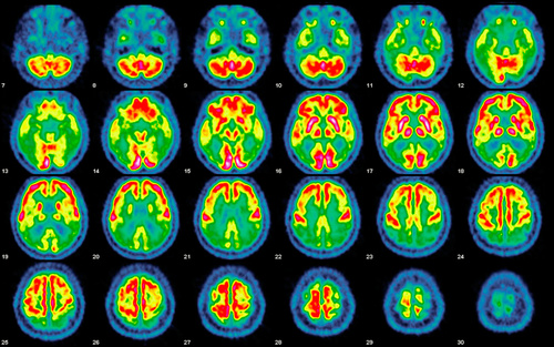 Card marsa essay brain activity