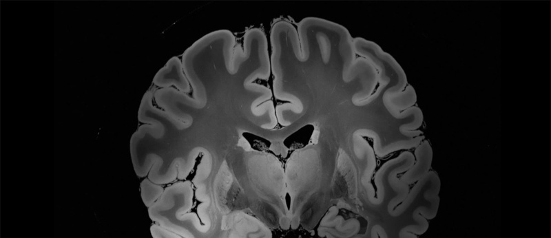 Neurosymphony