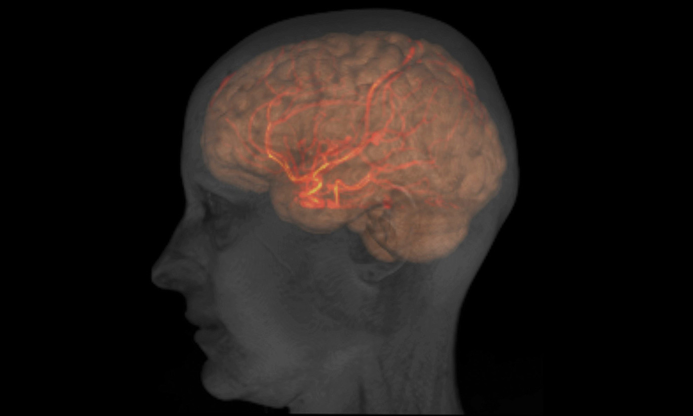 <p>MRI image of the head, brain and large arteries of a healthy female adult. <em>Courtesy Patrick Hales, UCL/Wellcome Institute</em></p>