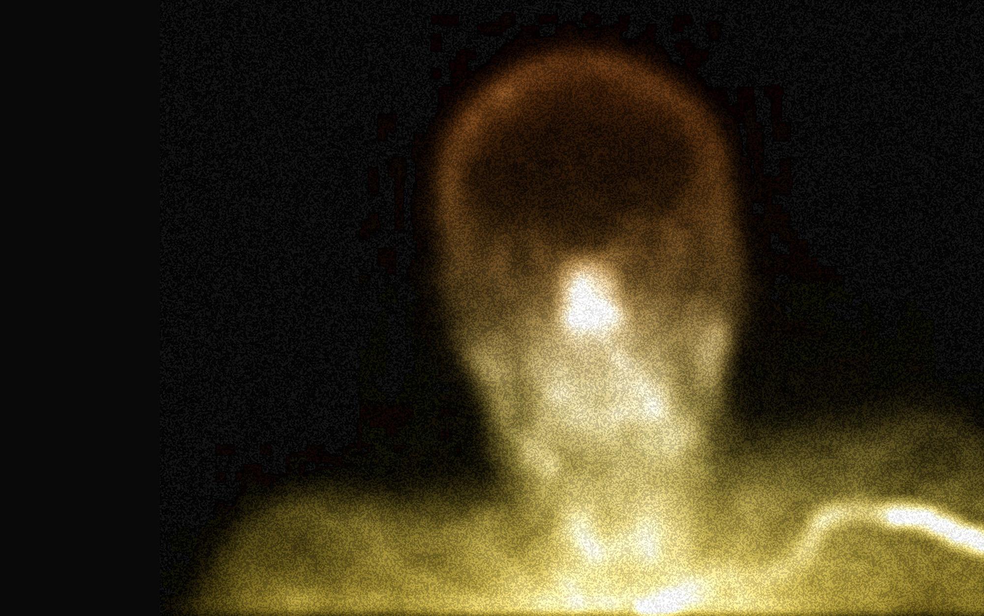 Neither person nor cadaver | Aeon
